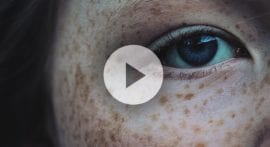 Why do we have freckles?