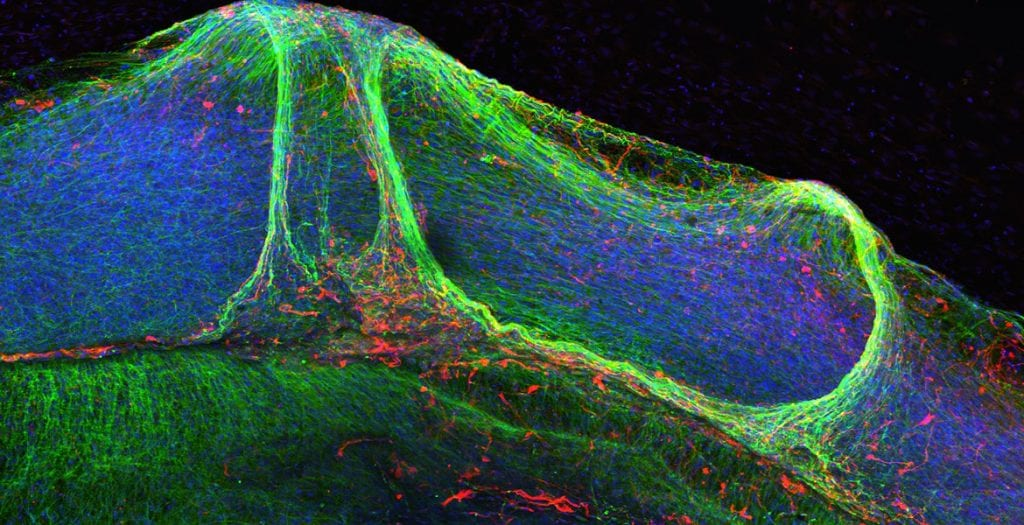 These are neural cells assembling in a dish at the James Thomson Lab, creating a model of human brain development. These structures can be used to test drugs for toxicity. The confocal microscopy image shows neurons (green), glial cells (red), and nuclei (blue) within a developing neural construct.