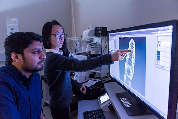 Jiarong Gao points at the schistosome brain in an adult worm.